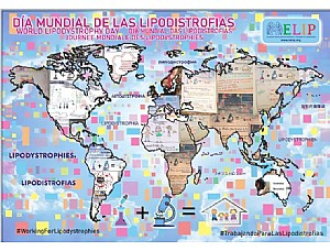 20 countries celebrate WORLD LYPODISTROPHY DAY 2020